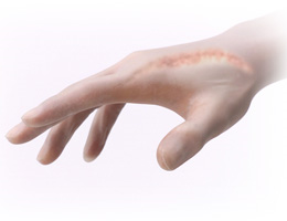 傷跡・肥厚性瘢痕・ケロイド・陥凹瘢痕