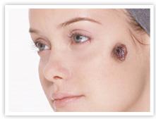 脂漏性角化症(Seborrheic keratosis)